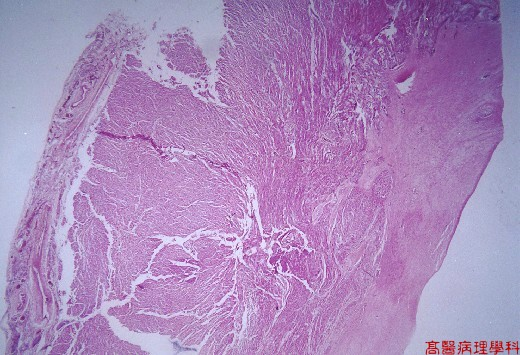 Kmu pathology lab slide 54 endocardial fibroelastosis heart for Diffuse mural thickening