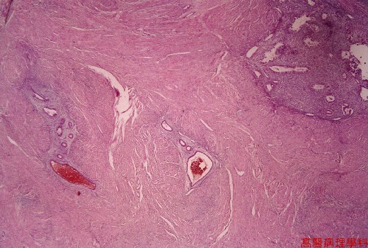Definiciones Médicas | foveolar hyperplasia icd 9